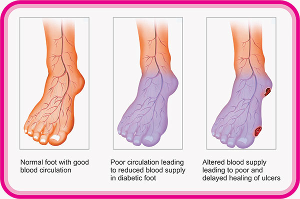poor-blood-flow-circulation-feet