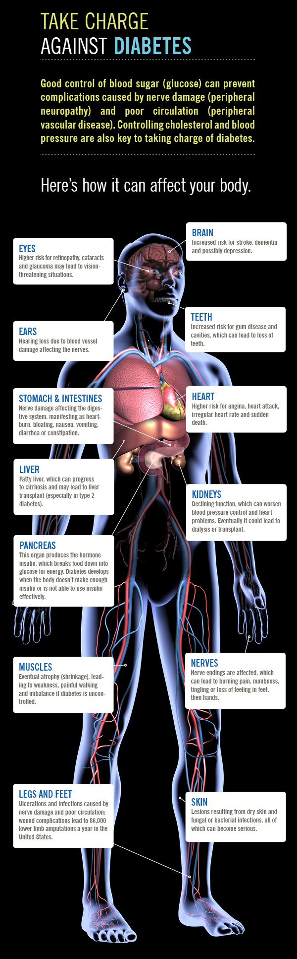 blood-sugar-control-infographic