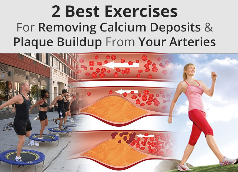 2 Best Exercises For Removing Calcium Deposits & Plaque Buildup ...