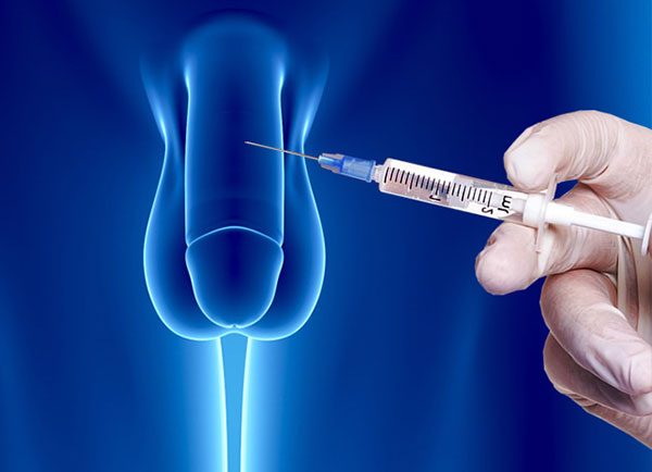 Penile-Injections