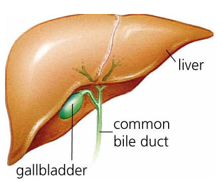 how-to-lose-weight-after-gallbladder-removal