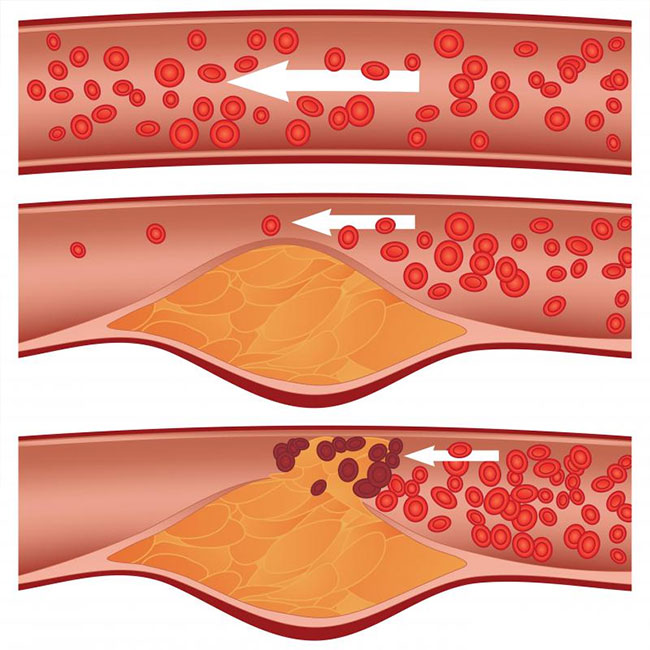 How-does-Artery-Plaque-Build-up