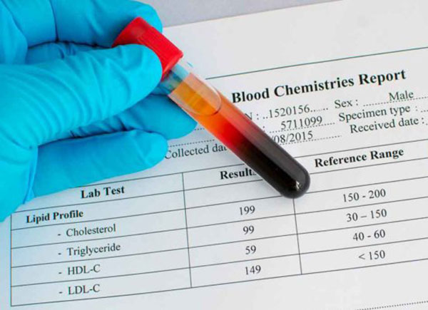 cholesterol-report