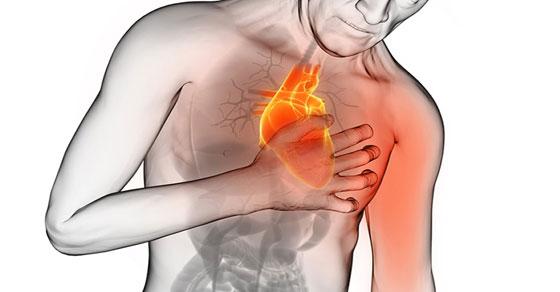 heart-stroke