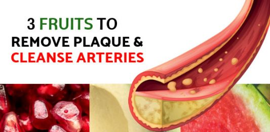 3 Fruits Clinically Proven To Remove Plaque & Cleanse Arteries