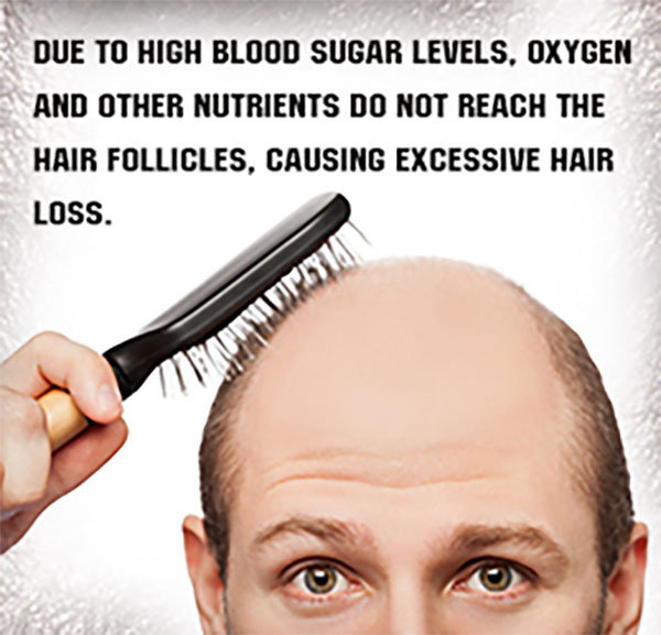 balding man due to high blood sugar