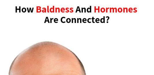 How Baldness and Hormones Are Connected