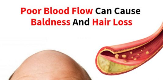Poor Blood Flow Can Cause Baldness and Hair Loss