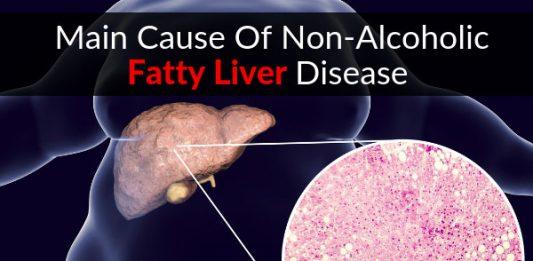 Main Cause Of Non-Alcoholic Fatty Liver Disease (NAFLD)