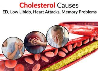 Cholesterol Causes ED, Low Libido, Heart Attacks, Memory Problems, Etc