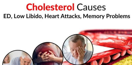 Cholesterol Causes ED, Low Libido, Heart Attacks, Memory Problems, Etc