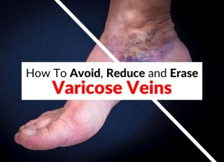 How To Avoid, Reduce and Erase Varicose Veins