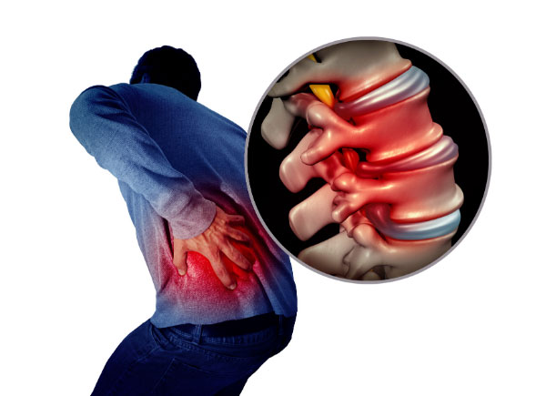 inflammation pain