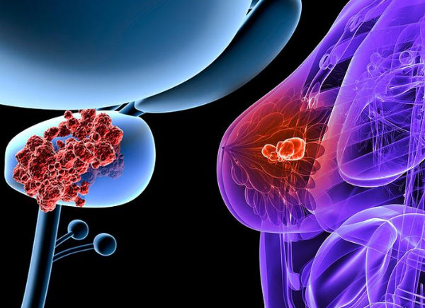 breast and prostate cancer