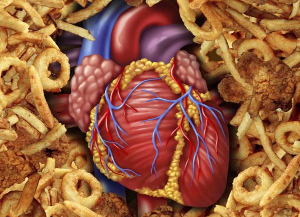 Trans Fats & Heart Disease