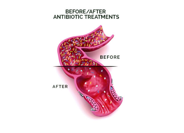 before after antibiotics