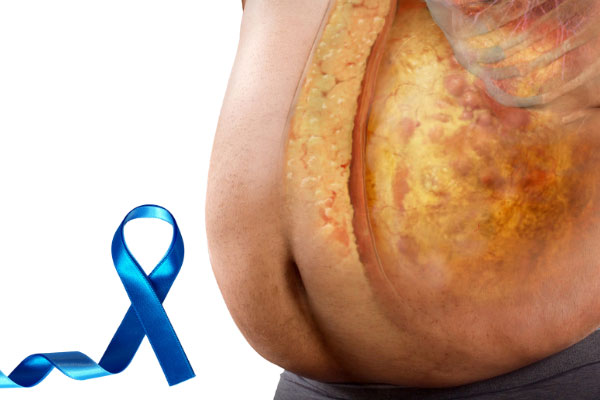 fat and prostate cancer