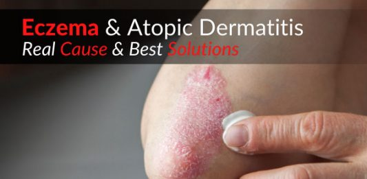Eczema & Atopic Dermatitis – Real Cause & Best Solutions
